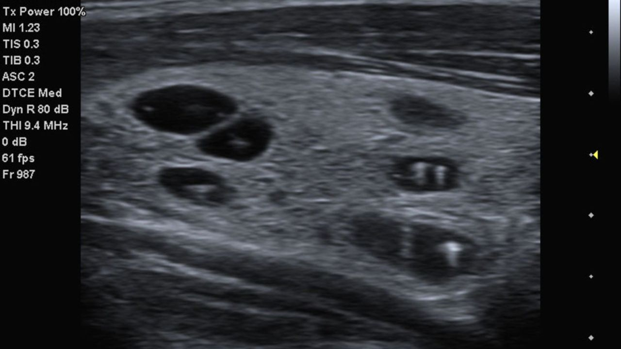 acuson-p500-thyroid-cysts-with-calcifications-02013828_10-06588477_10